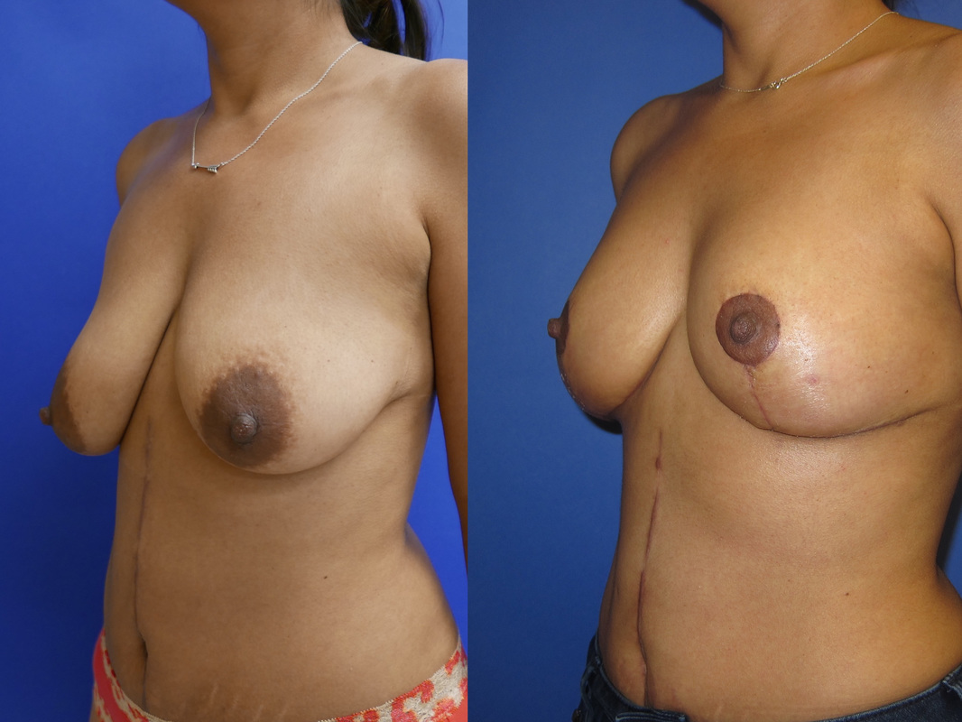 Breast Lift Before and After Photo