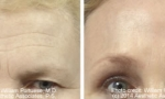 Brow Lift before and after photos