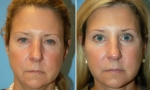 Forehead Lift before and after images