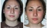 Bulbous Tip Nose Surgery photo