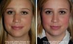 Bulbous Tip Nose Surgery photos