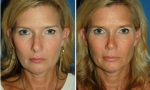 Crooked Nasal Bones Surgery photos
