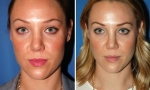 Crooked Nasal Bones Rhinoplasty photos