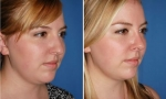 Crooked Nasal Bones Rhinoplasty images
