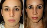 Crooked Nasal Bones Surgery images
