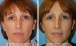 Rhytidectomy before and after photo