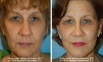 Face Lift before and after photos