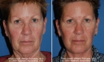 Rhytidectomy before and after photos