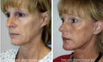 Face Lift before and after images