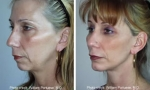 Chin Implant before and after images