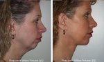 Chin Implant before and after photos