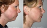 Chin shaping before and after images