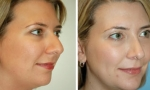 Chin shaping before and after photos