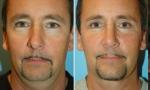 Narrow Nasal Bone surgery images