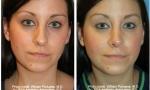 Narrow Nasal Bone surgery photos
