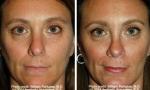 Narrow Nasal Bone Rhinoplasty images