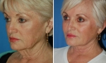 Neck Lift before and after photo