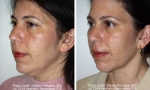 Neck Liposuction before and after photo
