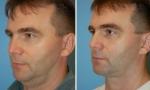Liposuction of the Neck photos