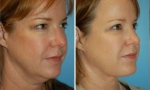Neck Lift / Liposuction before and after images