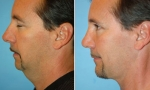 Neck Liposuction before and after photos