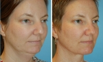 Liposuction of the Neck photos