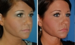 Neck Lift / Liposuction before and after photo