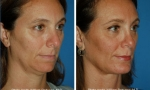 Neck Liposuction before and after images