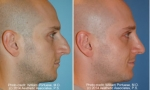 Nasal Contouring before and after image