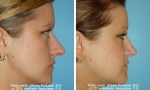 Nasal Contouring before and after pictures
