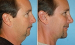 Nose Surgery before and after photos