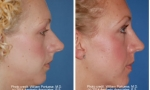 Rhinoplasty before and after patient images