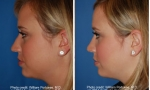 Nose Surgery before and after photo