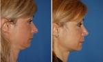 Nose Surgery before and after images
