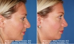 Nasal Contouring before and after photo