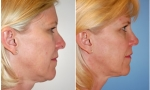 Nasal Contouring before and after photos