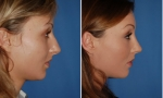 Before/After Photo of Rhinoplasty Patient