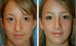 Wide Nasal Bone Surgery photos