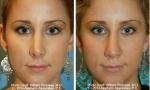 Wide Nasal Bone Rhinoplasty photos