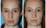 Wide Nasal Bone Rhinoplasty images