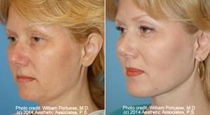 Chin Implants in Seattle Washington - Chin Augmentation