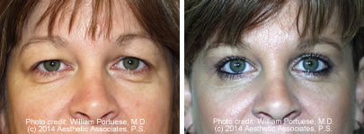 Blepharoplasty Bellevue WA - Eyelid Surgery Washington State