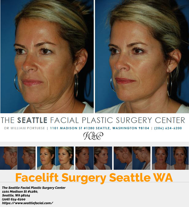 facelift before and after photo of patient from Seattle WA