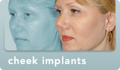 cheek implants