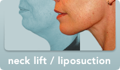 neck lift/liposuction