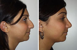 Possible Complications With Rhinoplasty | Seattle WA