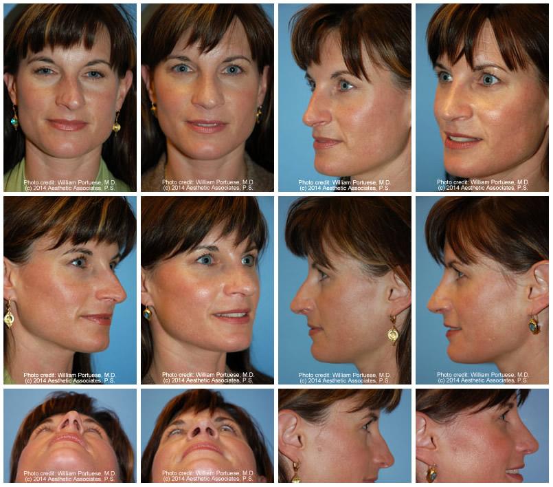 Rhinoplasty For Asymmetrical Nose | Dr William Portuese