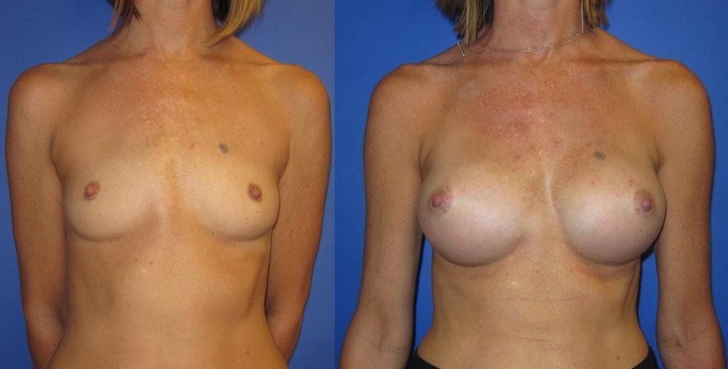 Breast Augmentation in Seattle WA