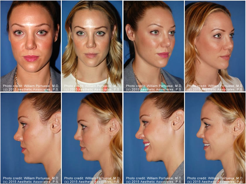 Revision-Rhinoplasty-Seattle