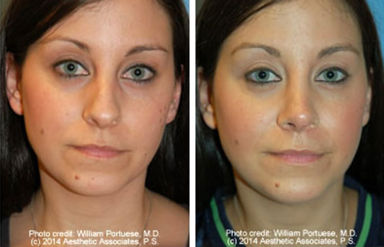 closed-rhinoplasty